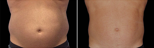 abdomen 12 semaines coolsculpting