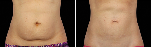 abdos coolsculpting femme abdomen