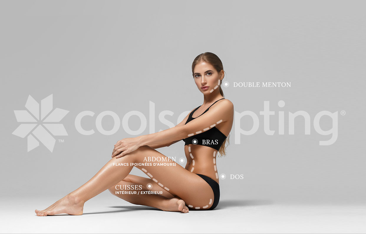 coolsculpting zones mobile fr