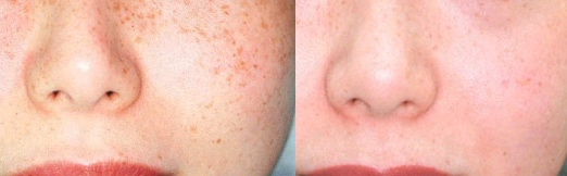 IPL before after freckles