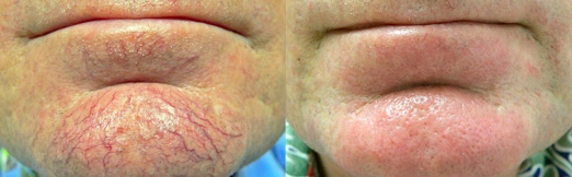 IPL before after menton chin