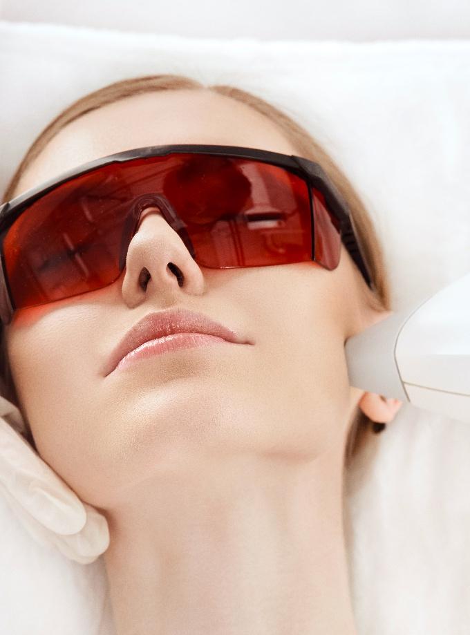photorajeunissement IPL lumiere pulsee traitement